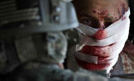 驻阿富汗美军受伤